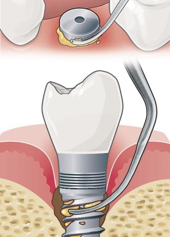 Acteon Implant Protect Tip IP1