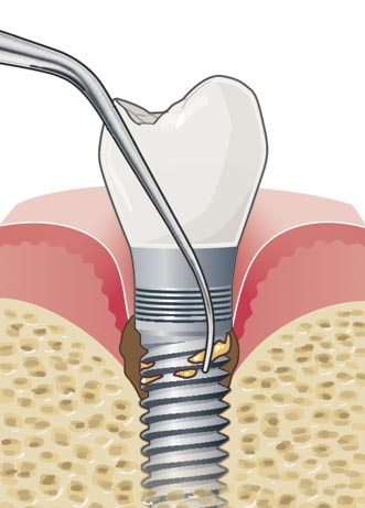 Acteon Implant Protect Tip IP2R