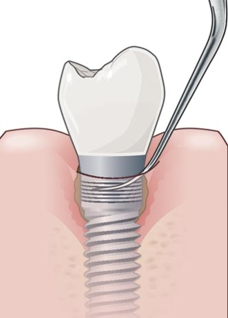 Acteon Implant Protect Tip IP3L