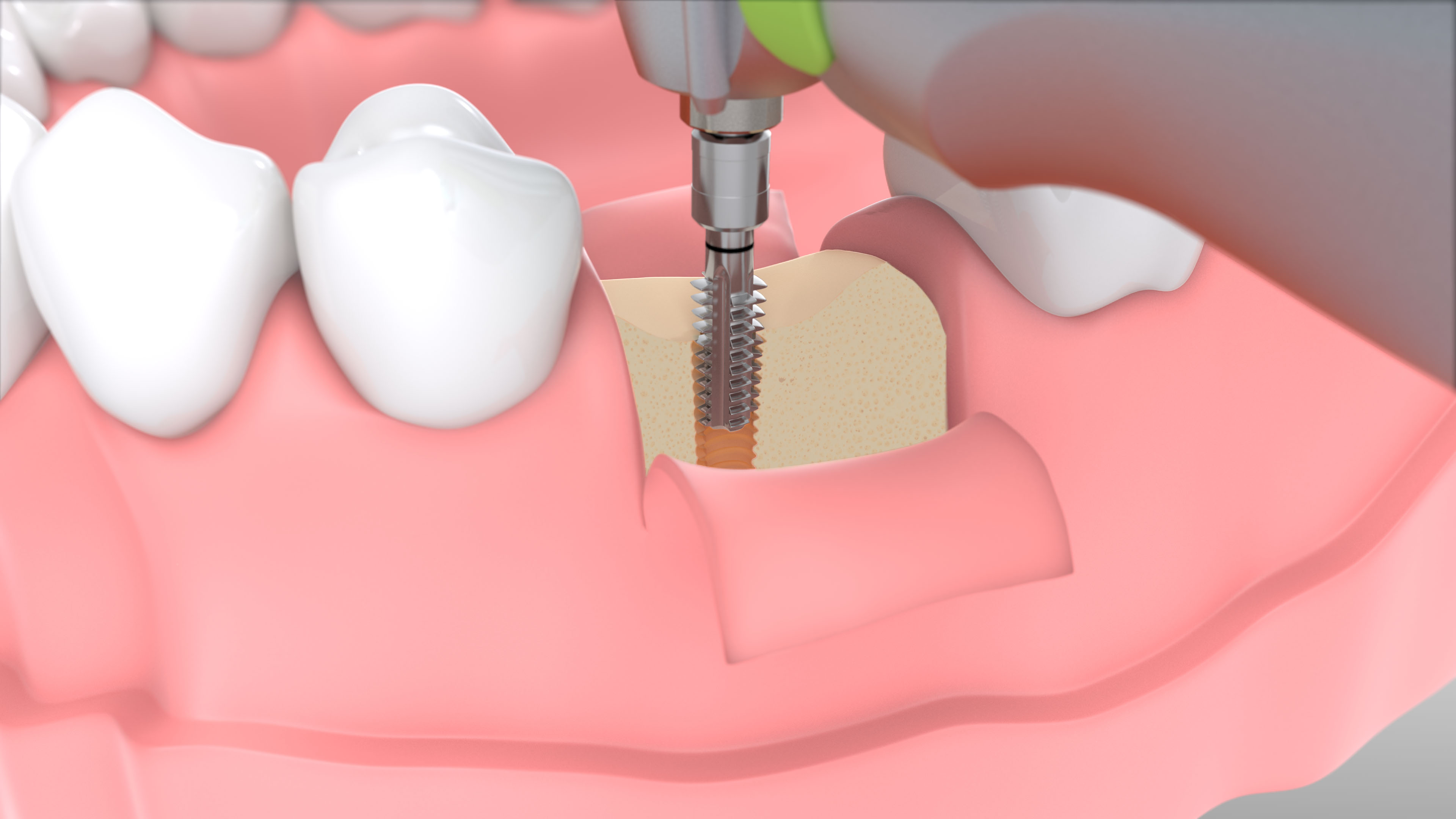 W&H Implantmed Thread Cutter