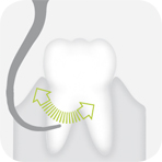 W&H Piezomed Tooth illustration