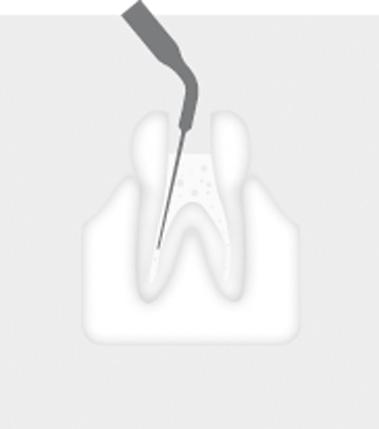 W&H Endodontic Tip 1E
