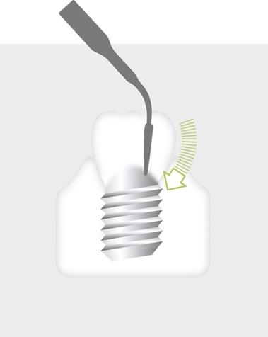 W&H Implantology Tip 1I