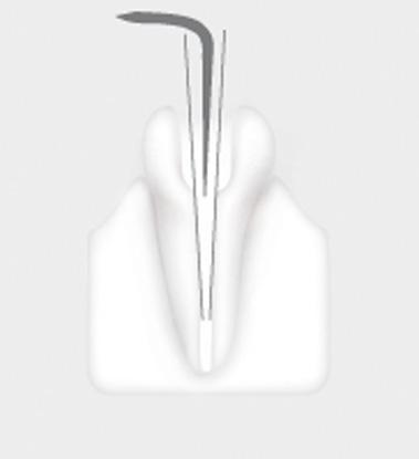W&H Endodontic Tip 2E