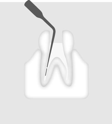 W&H Endodontic Tip 3E