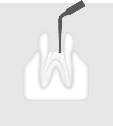 W&H Endodontic Tip 4E
