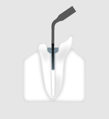 W&H Endodontic Tip 5E