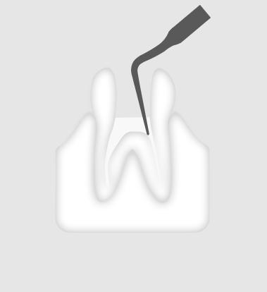 W&H Endodontic Tip 6E
