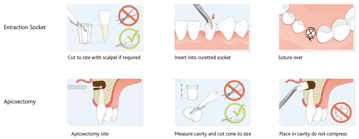 Parasorb cone guidelines